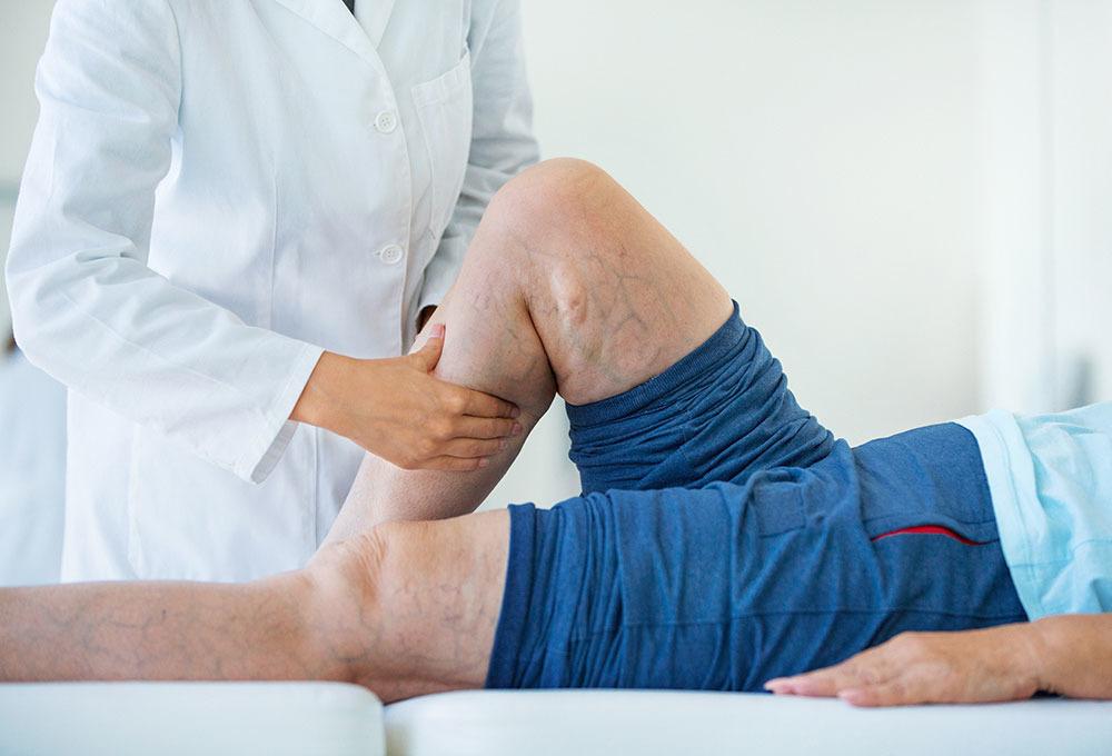 bacak ağrısı